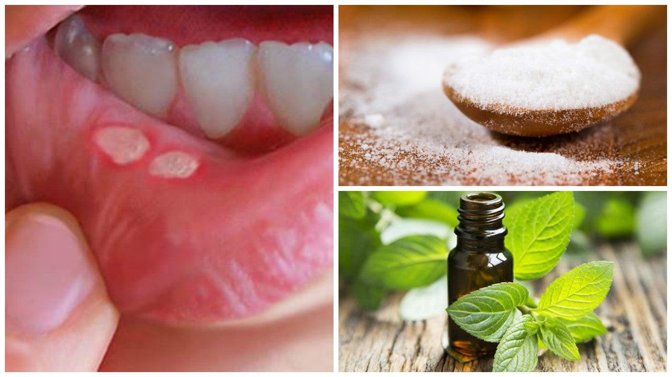 Acelera la recuperación de las llagas en la boca con estos 7 tratamientos caseros