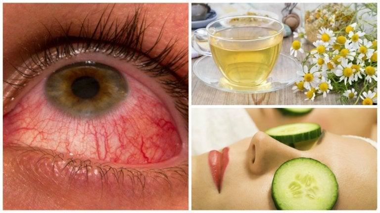 Alivia la conjuntivitis con estos 6 remedios naturales