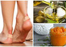 Alivia las ampollas de los pies con estos 7 remedios naturales