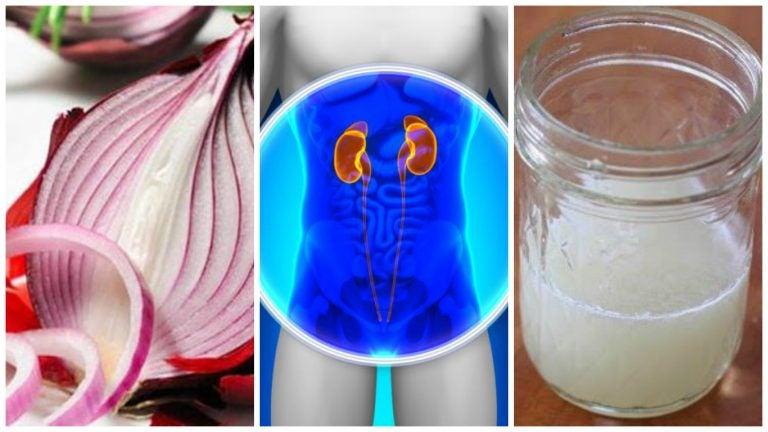 Cómo preparar un remedio con cebolla para limpiar los riñones