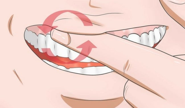 Combate la inflamación de las encías con estos 8 remedios caseros