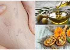 Combate las venas varices con este tratamiento de aceite de oliva y caléndula