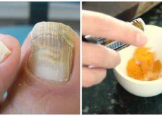Combate los hongos en las uñas con un tratamiento natural de cúrcuma