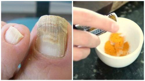 La cúrcuma tratamiento natural para los hongos en la uñas