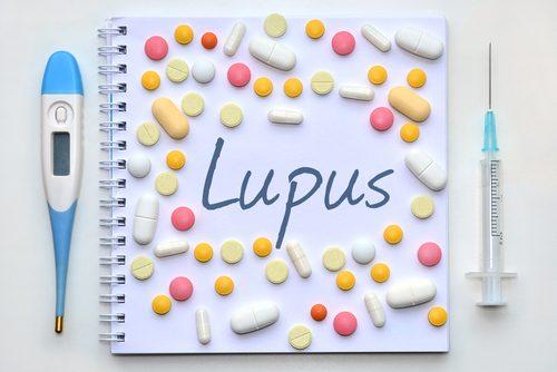 Es posible reconocer el lupus