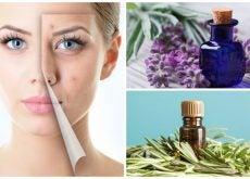 Limpia tu piel del acné con estos 6 maravillosos aceites esenciales