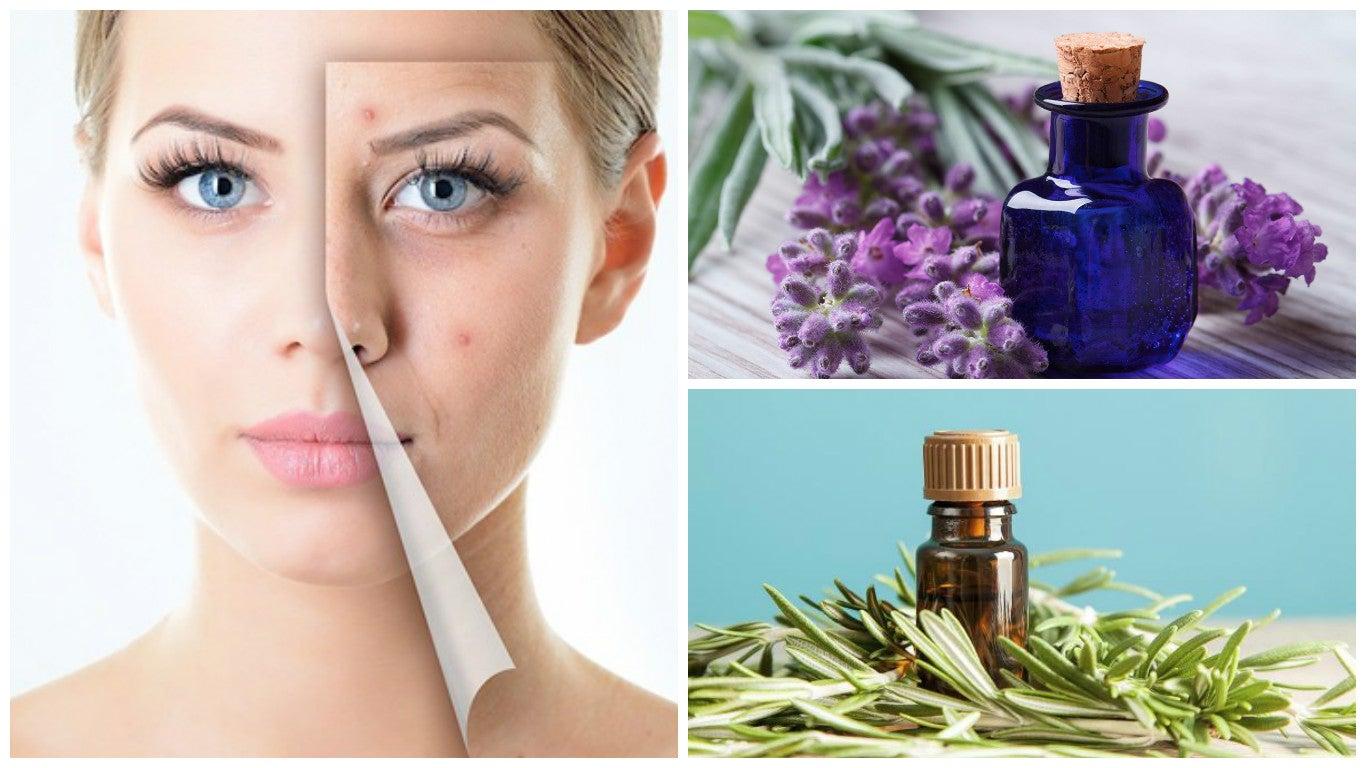 Limpia tu piel del acné con estos 6 maravillosos aceites esenciales ... 7a4ff940c091