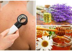 Los 6 mejores tratamientos caseros para combatir el acné de la espalda