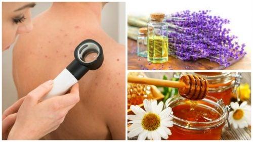 El mejores acne tratamientos naturales para
