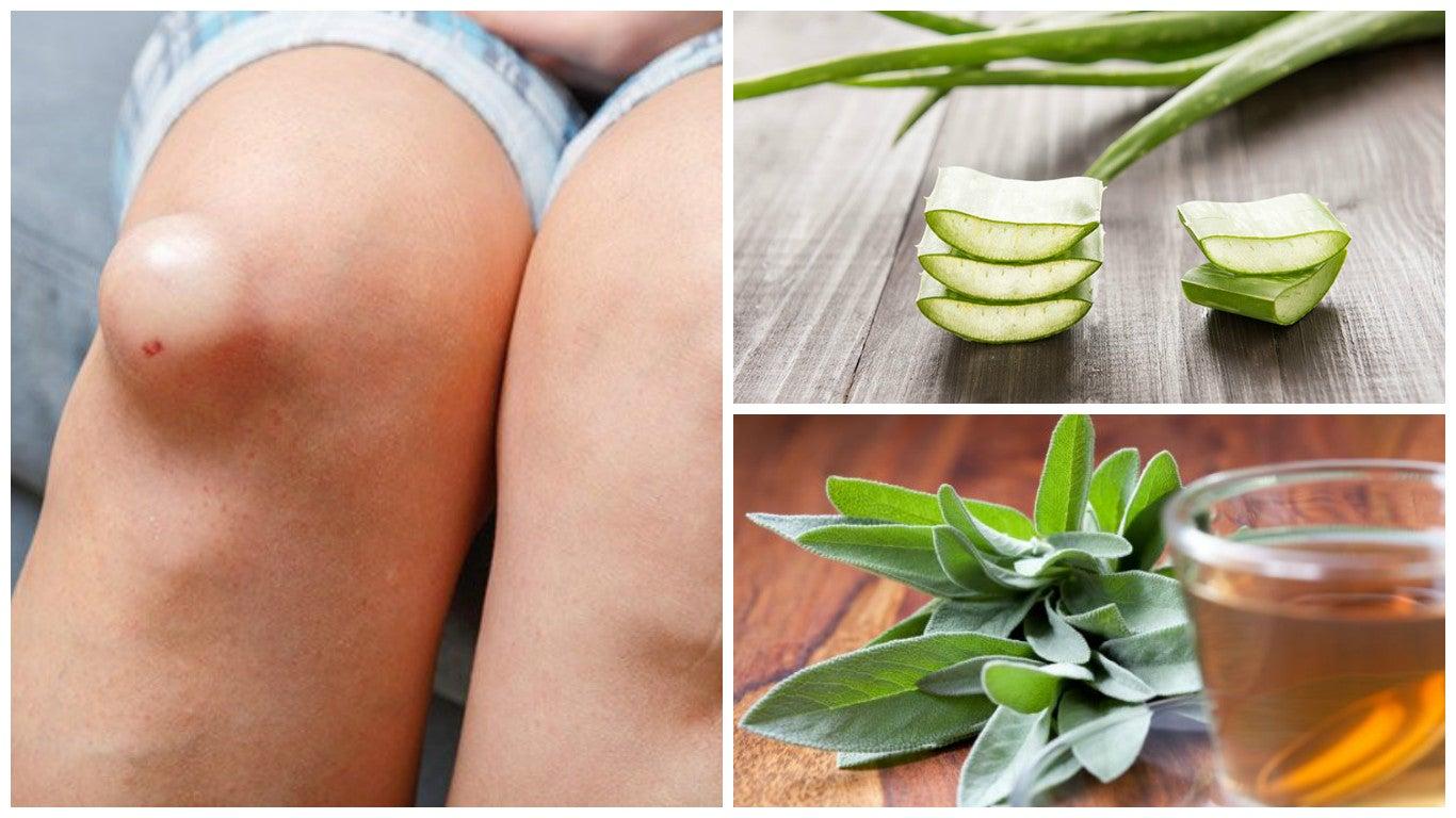Los mejores 5 remedios antiinflamatorios para eliminar el líquido de la rodilla