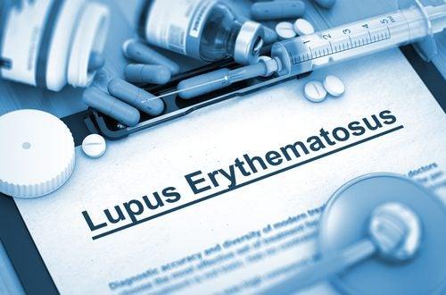 Tipos de lupus