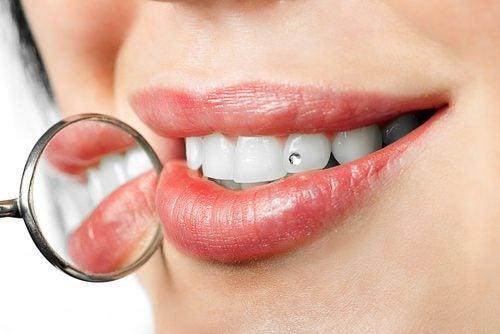 Tratamientos modernos, ortodoncia lingual e invisalign