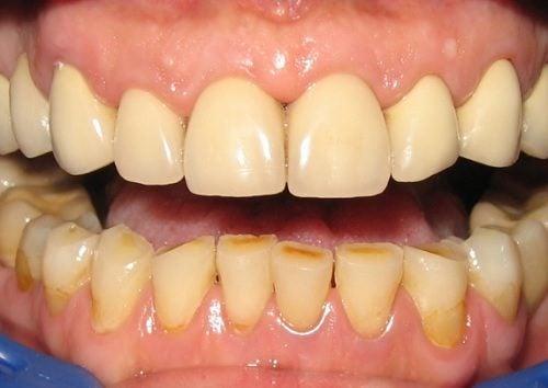 10 formas de eliminar la placa dental naturalmente