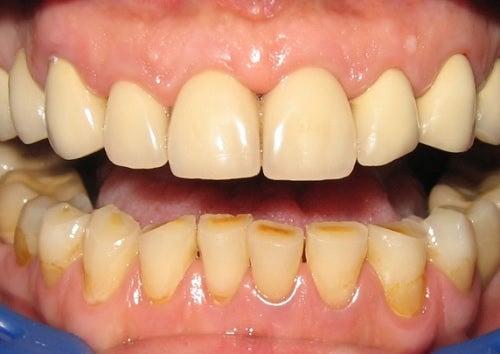 10 Formas De Eliminar La Placa Dental Naturalmente Mejor Con Salud