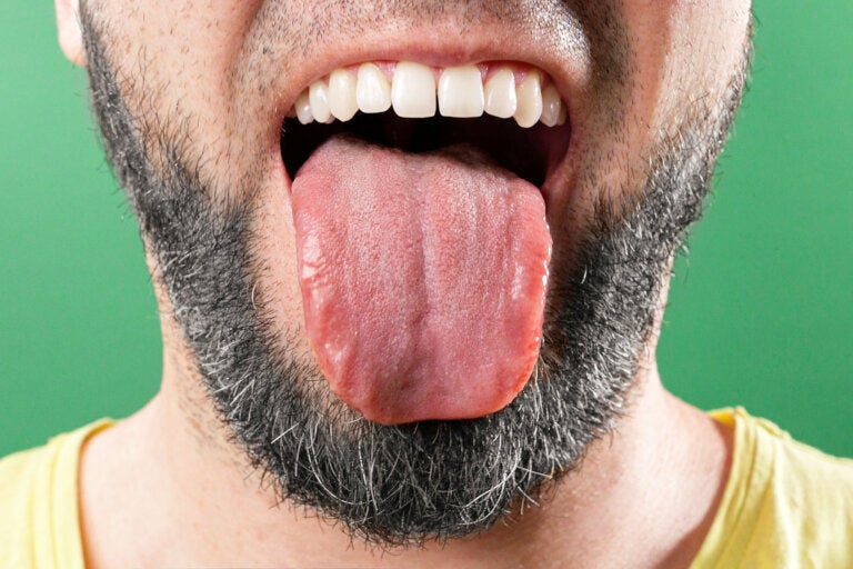 6 cosas que tu lengua intenta decirte sobre tu salud