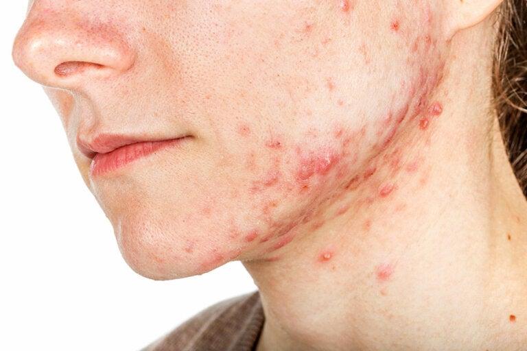 ¿Qué son las glándulas sebáceas y cómo puedes contribuir a tu piel?
