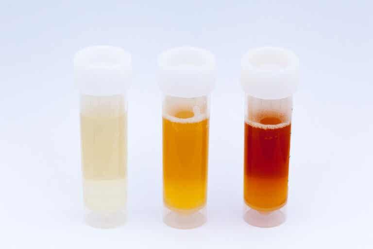 ¿Qué dice el color de la orina sobre la salud?