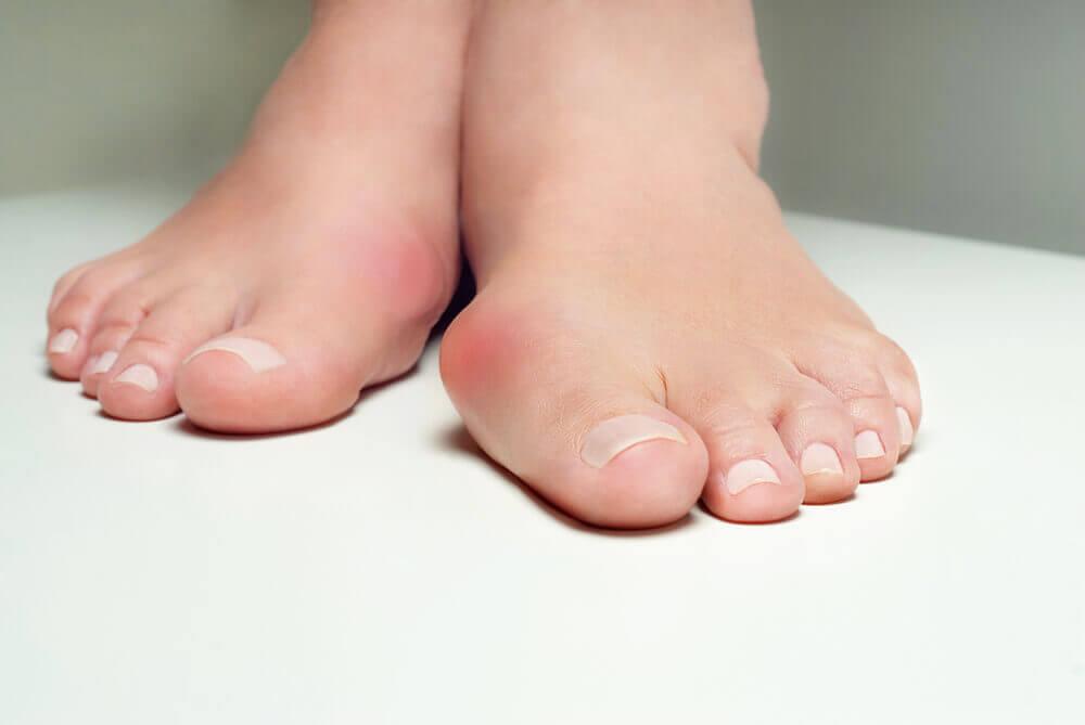 7 formas de aliviar el dolor por juanetes