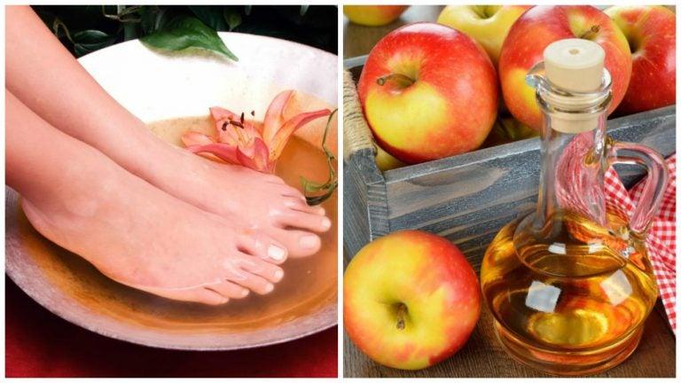 6 beneficios que obtienes por sumergir tus pies en vinagre