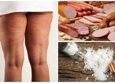7 alimentos que debes evitar si quieres combatir la celulitis