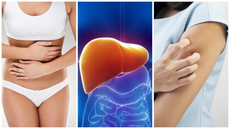 8 síntomas que te aquejan cuando tu hígado está sobrecargado de toxinas