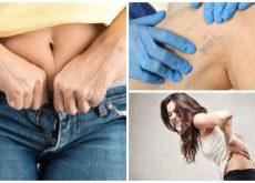 9 problemas a los que te expones por usar ropa demasiado ajustada