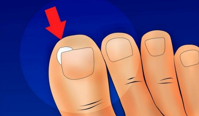 Cómo evitar que se nos encarnen las uñas
