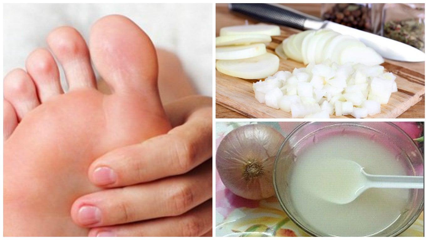 Dile adiós a las durezas en tus pies combinando dos ingredientes naturales