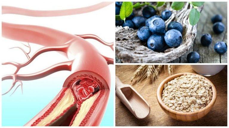 Mejora tu salud arterial consumiendo estos 9 alimentos