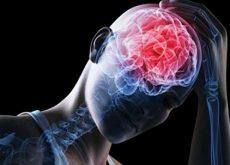 conmocion cerebral