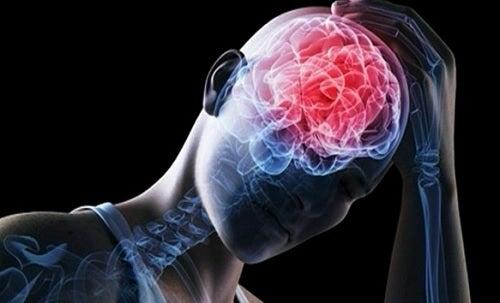 Los síntomas de la conmoción cerebral