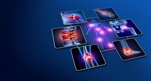 Diferencias entre la artrosis, la artritis y la osteoporosis que debes conocer