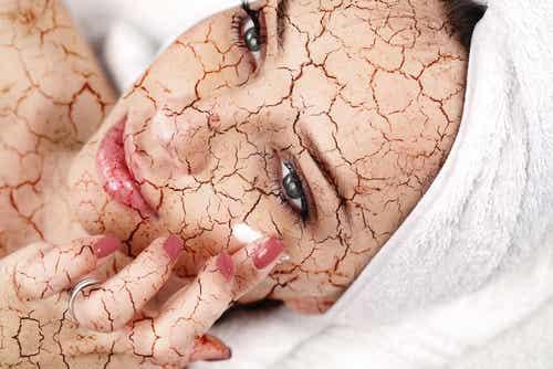 ¿Cómo tratar la piel seca del rostro?