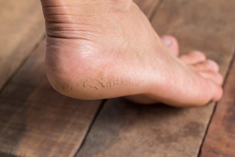 Que es un espolon en el pie izquierdo