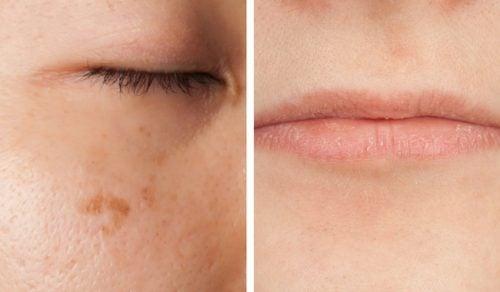 5 síntomas de la falta de vitaminas que pueden leerse en el rostro