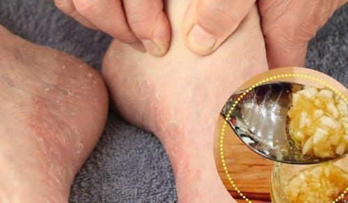 Como combatir el pie de atleta con remedios caseros