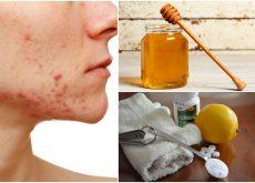 6 remedios naturales para hacerle frente al acné quístico