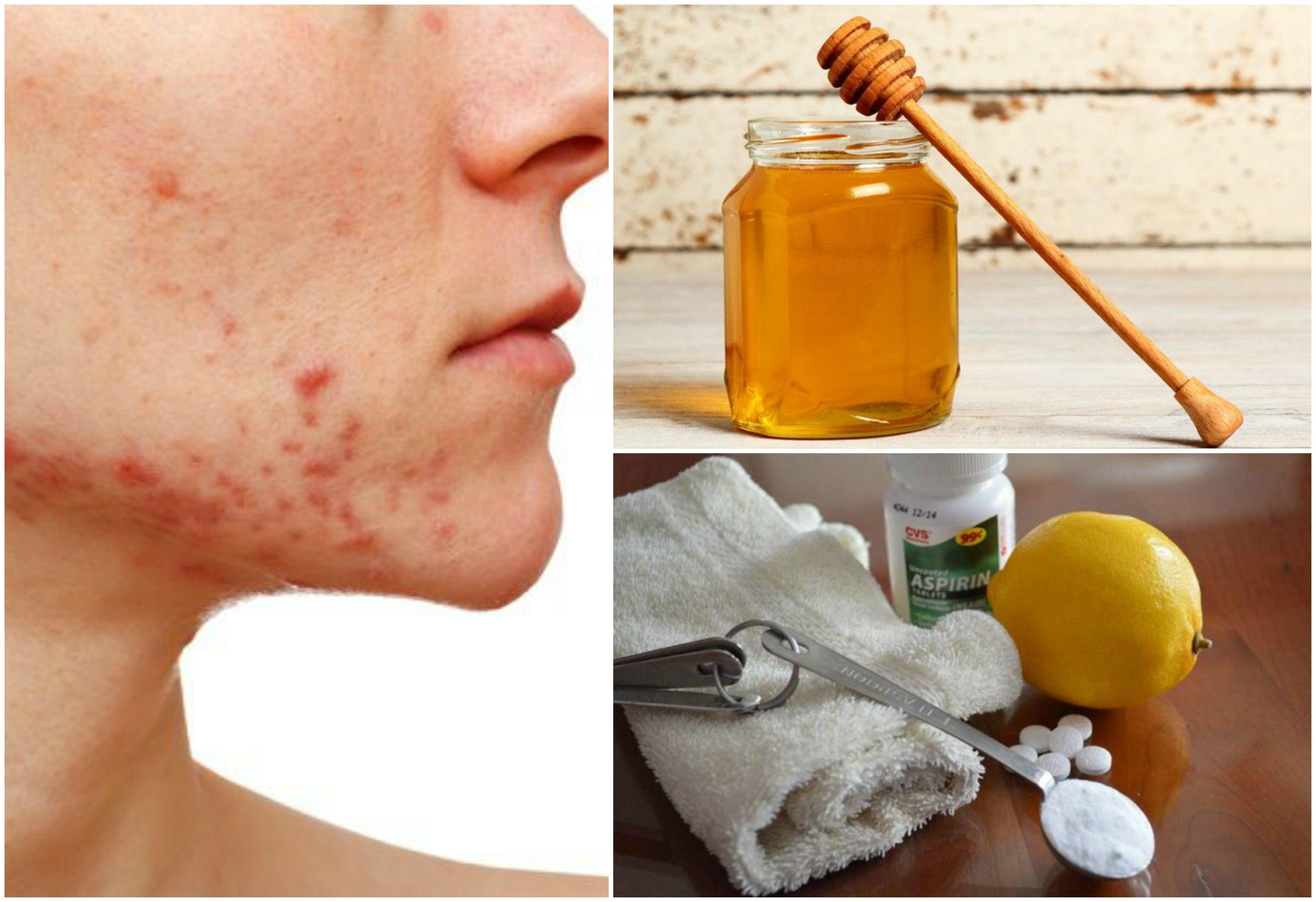 6 Remedios Naturales Para Hacerle Frente Al Acné Quístico Mejor Con Salud