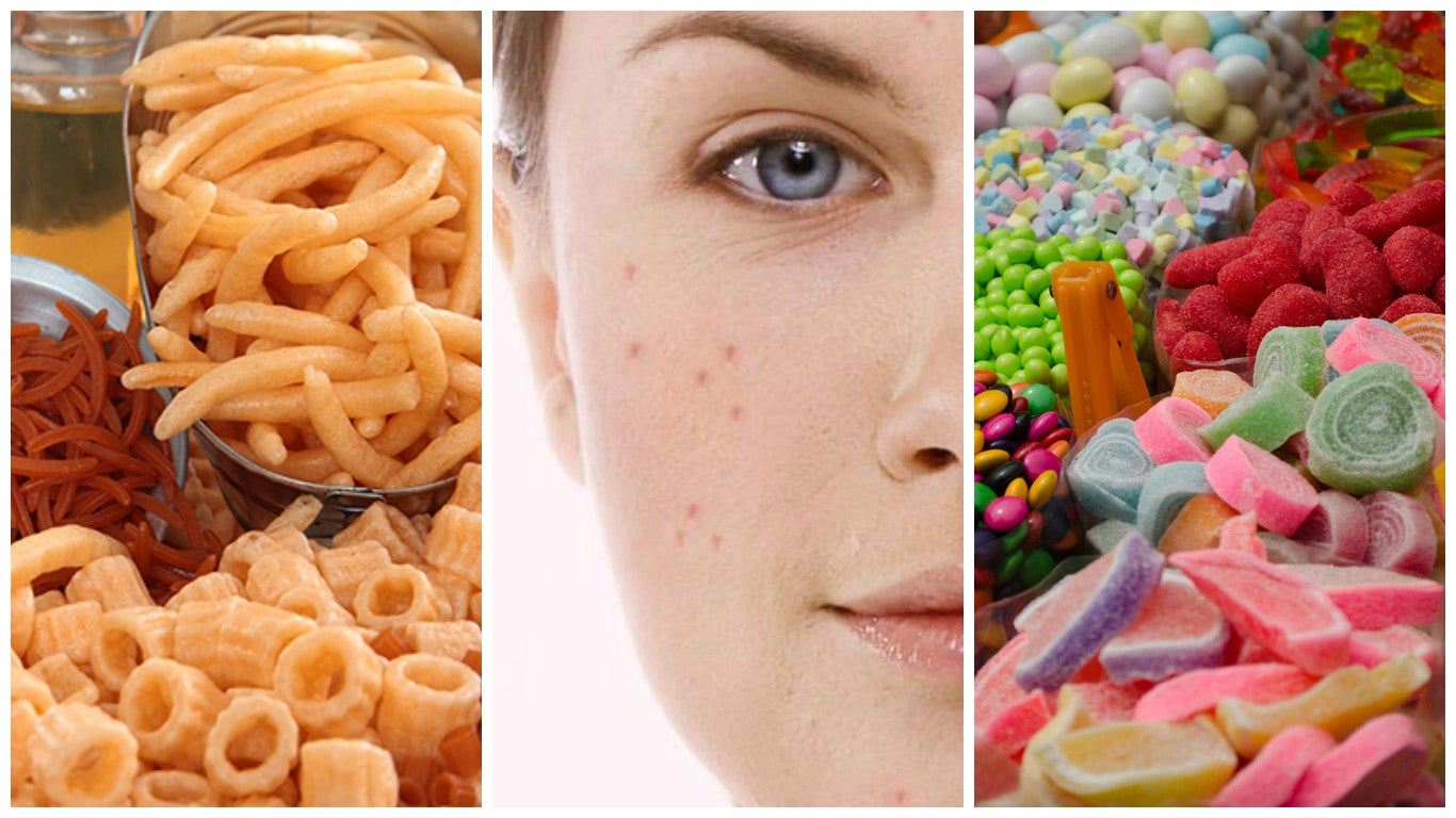7 alimentos que pueden perjudicar tu piel