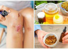 8 ingredientes naturales que puedes usar para aliviar las heridas superficiales