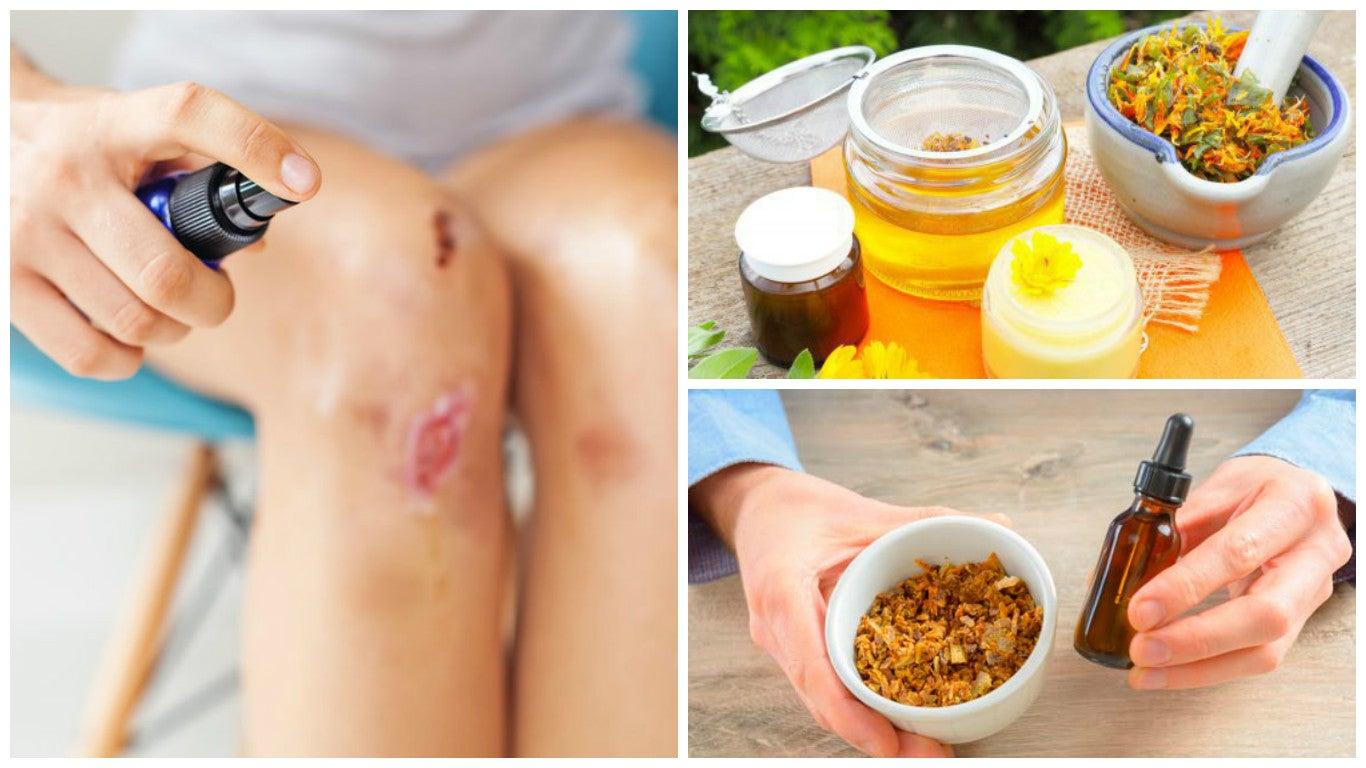 8 ingredientes naturales que puedes usar para aliviar las heridas de la piel