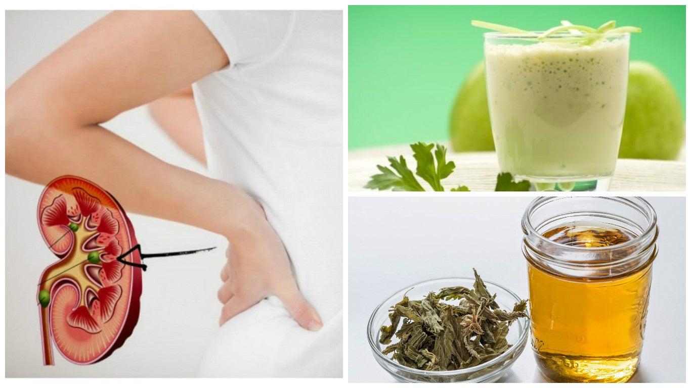 Cómo combatir los cálculos renales de forma natural con 5 remedios