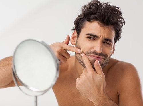Cómo usar este ungüento para aliviar el aspecto del acné