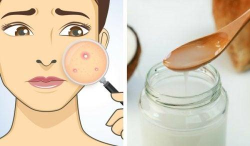 Crema hidratante casera para combatir el acné de manera natural