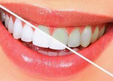 blanquear los dientes naturalmente
