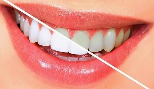Tipos de blanqueamientos dentales.