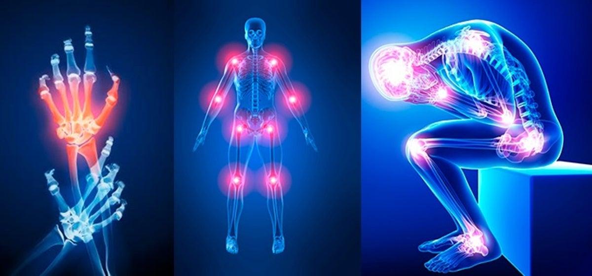 ¿Puede el dolor articular elevar la presión arterial?