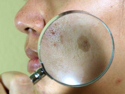 7 tratamientos naturales para el paño en la cara