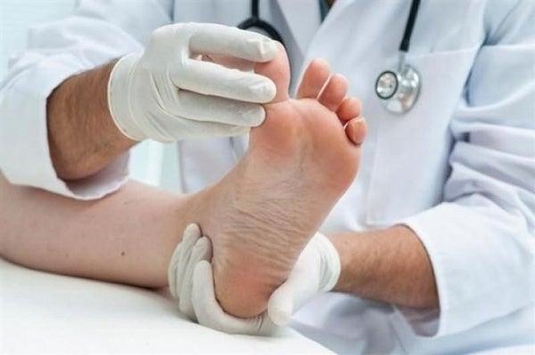 Maneras naturales para eliminar el pie de atleta