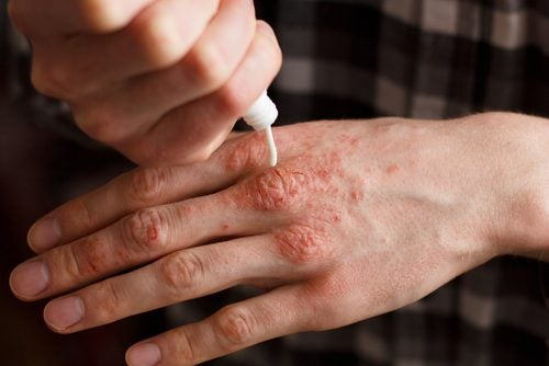 6 cremas naturales para tratar la psoriasis